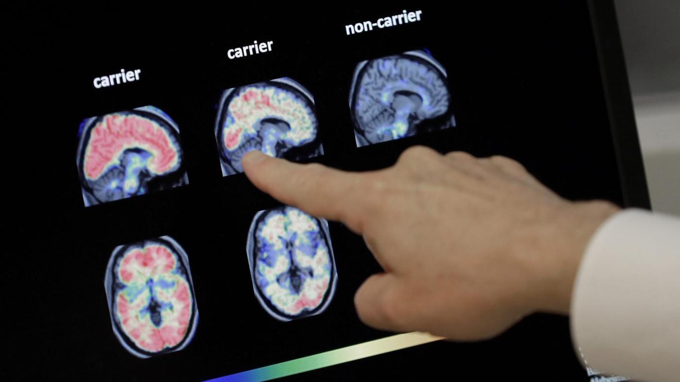 Foto de O medicamento para aducanumabe da Alzheimer da Biogen ainda está a meses de distância – Quartzo